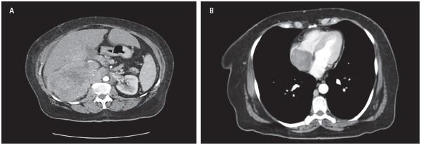 Figura 1. A. Tomografía axial computarizada de abdomen contrastado. B. Tomografía